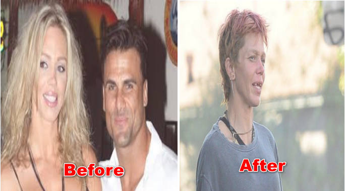 Loni Willison Before and After